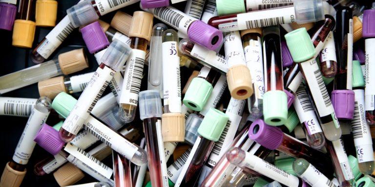 Noi clarificări privind posibilele reacții alergice după administrarea vaccinului COVID-19